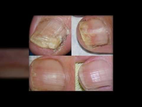 Die äusserlichen Mittel für die Behandlung gribka des Fusses und der Nägel