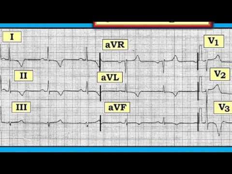 Les organes cibles à létape 2 de lhypertension