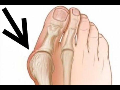Как удалить шишку на большом пальце ноги