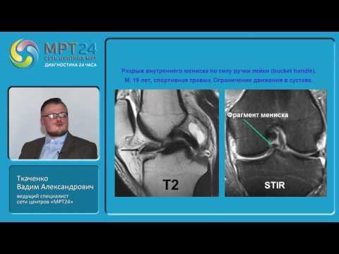 МРТ диагностика травм и патологий коленного сустава