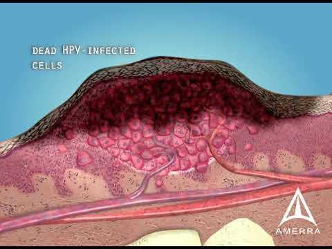 Warts: Causes, Treatment, and Removal