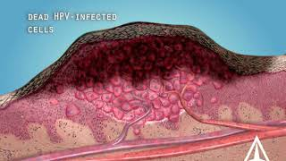 Warts - 3D medical animation
