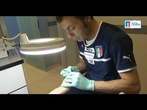 Il fungo di unghie che hanno la possibilità di trattare lacido borico