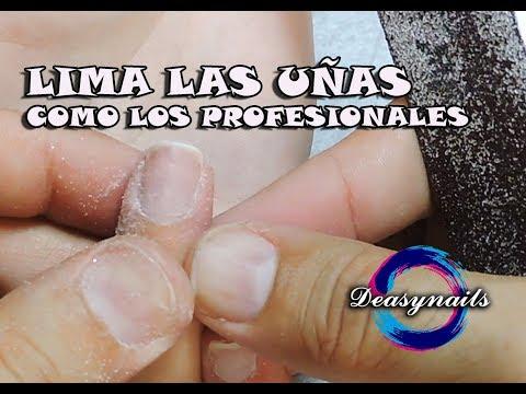 Si pasa el hongo de las uñas de la persona