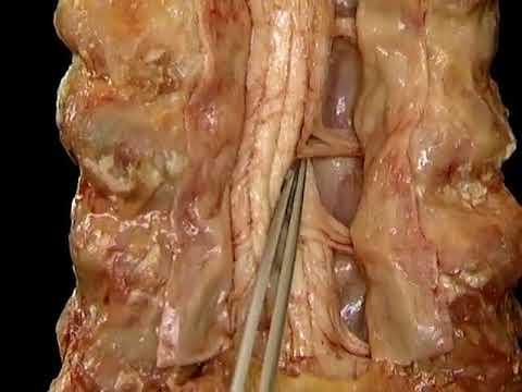 Herniados consecuencias de la columna cervical