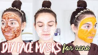 4 DIY Face Masks For ACNE | How To Get Rid Of Pimples OVERNIGHT