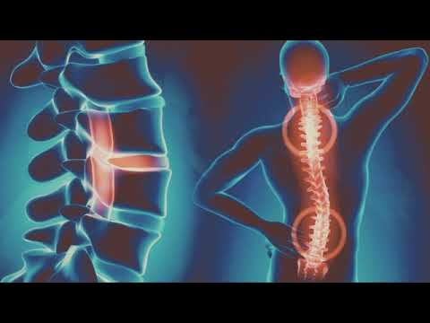 Hogyan kell kezelni a csípőízületek összeomlását