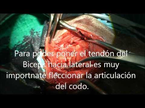 Resonancia magnética de la columna vertebral cervical programa de cáncer de garganta