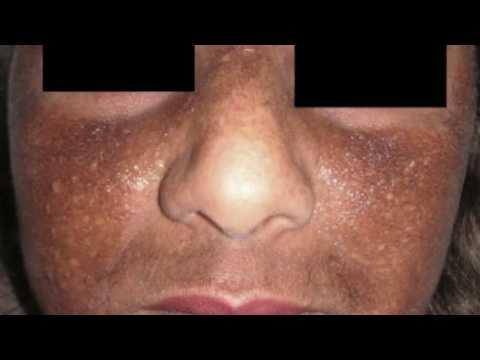 Le masque pour la personne le persil blanchissant