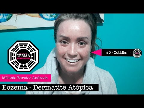 Applicazione di triderm a eczema