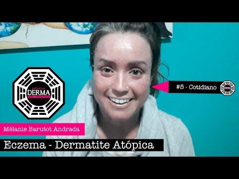 Cura di pelle a dermatite atopic a