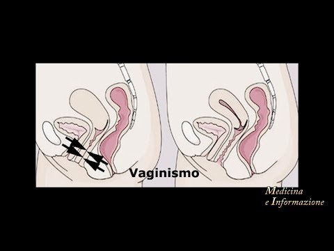 Video erotico di sesso