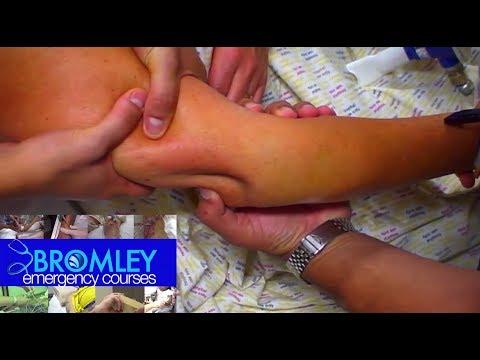 Picioarele umflarea articulațiilor rănite