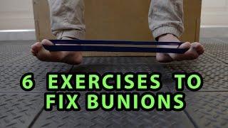 6 Exercises to Fix Bunions