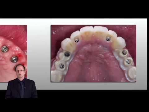 Complicanze del diabete nel trattamento dellocchio