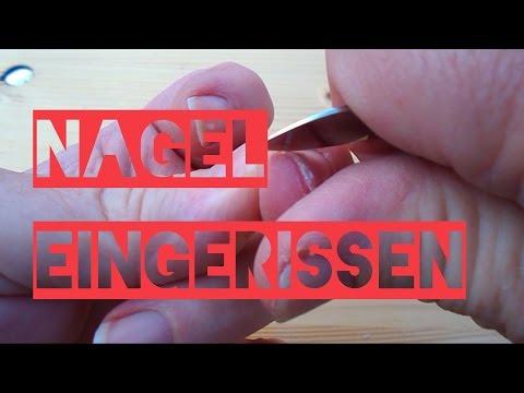 Gribok der Nägel auf den Beinen die komplexe Behandlung