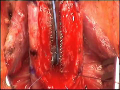 Recurrent Anterior Urethral Strictures (Stent Failure) - Management
