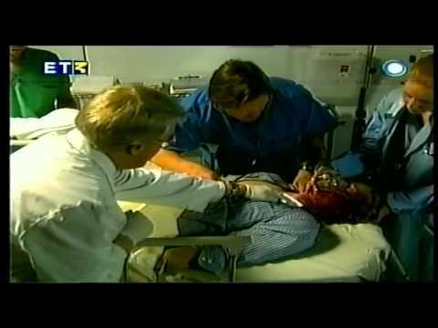 Αίμα μετρητή πίεσης adyutor IBP-01