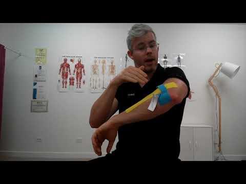Dimexid a térd artrózisában