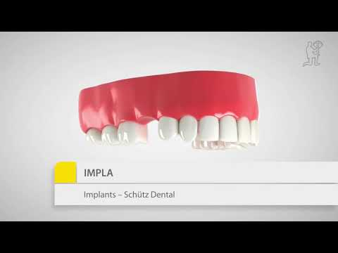 IMPLA implantaten SCHÜTZ dental