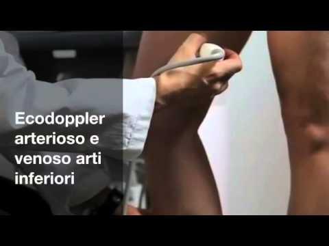 Agobiopsia prostatica biopsia