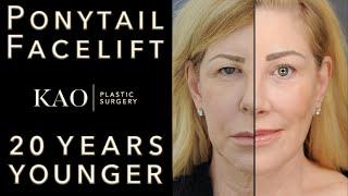 The Best Facelift Before and After - 20 YEARS YOUNGER! Kao Plastic Surgery - Ponytail Facelift™