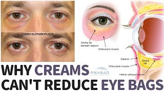 Why Creams Can't Treat Constantly Puffy Under Eye Bags