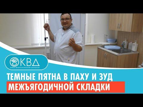 ☹ Темные пятна в паху и зуд межъягодичной складки. Клинический случай №463