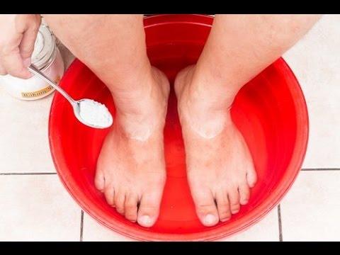 Como sanar el hongo en el pie y las uñas