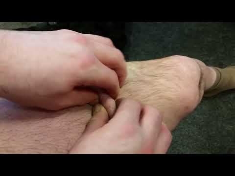 Ostrokonetschnyj der Ansatz auf dem Finger