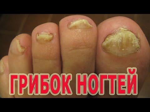 Wie die Mykose der Nägel der Füsse zu behandeln