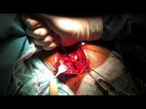 Cosa fare se infiammato colonna cervicale ernia