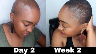 BALD HEAD SCALP CARE | Wash Routine | Hair Growth | YemuDaily
