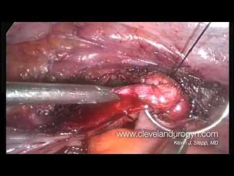 Laparoskopowe usunięcie macicy i jajników - część 4 z 4