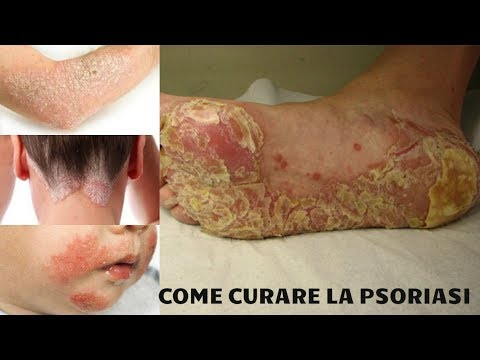 Come guarire la psoriasi per il 100 percento