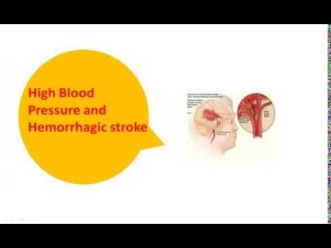 Wie zu heilen portale Hypertension