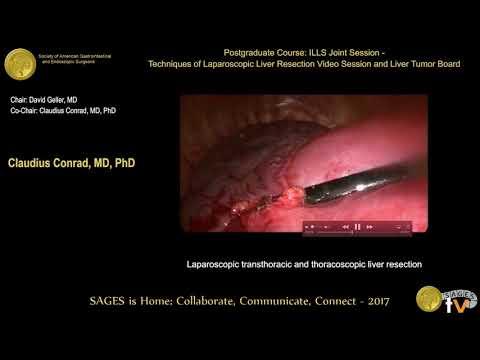 Przezklatkowa laparoskopowa resekcja wątroby