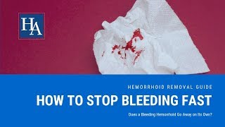 How to Stop Hemorrhoid Bleeding Fast | Does a Bleeding Hemorrhoid Go Away on Its Own?