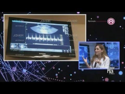 Sherlyn muestra el VIDEO de su ultrasonido y revela detalles de su inseminación
