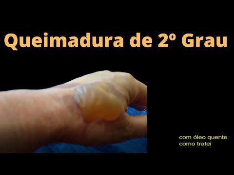 Coceira e eczema em uma virilha