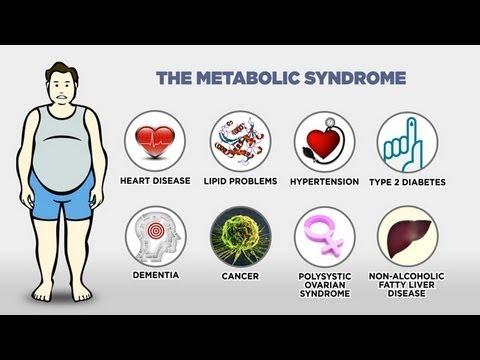 Obezita #1: Epidemie, která se týká každého