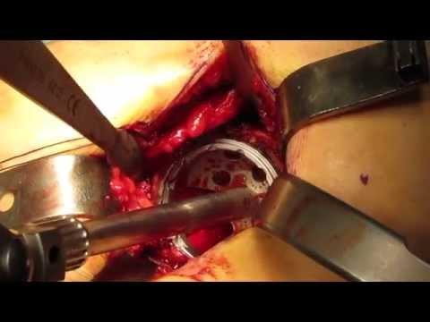 Fisioterapia complesso con un gomito rotto