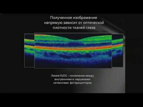 Центр коррекции зрения литейный 25