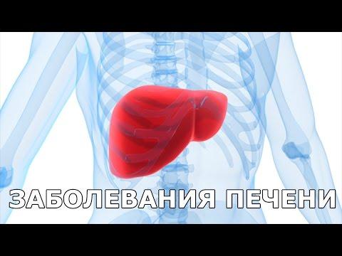 Лечение гепатита с в нижневартовске