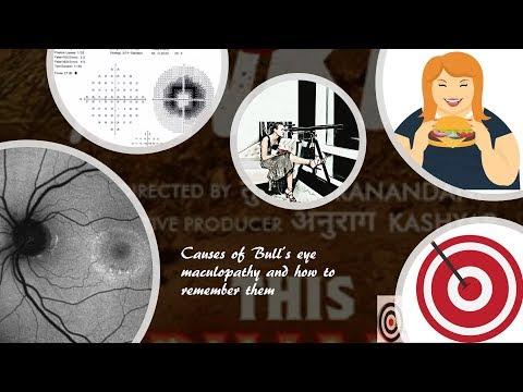 a látás asztigmatikája az