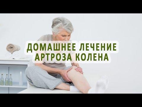 Как можно лечить артроз коленного сустава в домашних условиях?