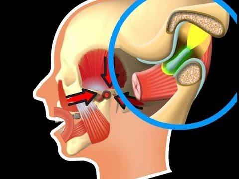 Kurve der Wirbelsäule und ihre Behandlung