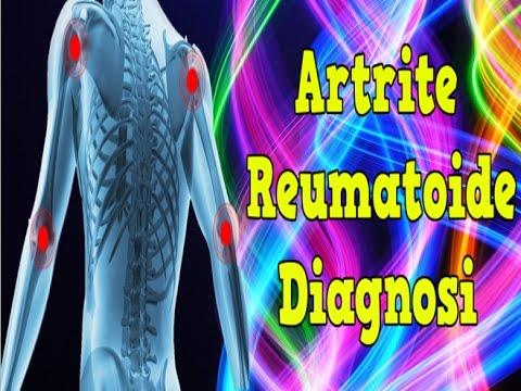 Ginnastica in ginocchio ligamentoze