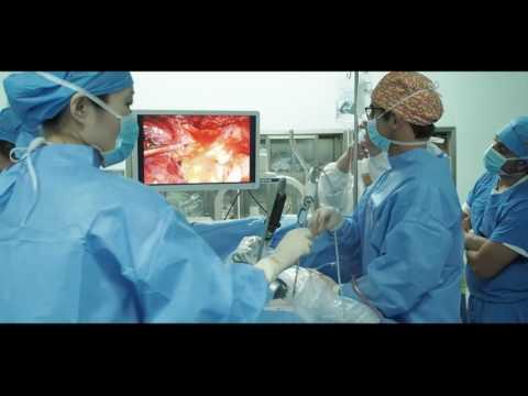 Wideotorakoskopowa lobektomia środkowa z jednego cięcia bez asysty