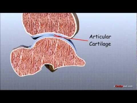 Quinto conjunto artrosis metatarsofalángica